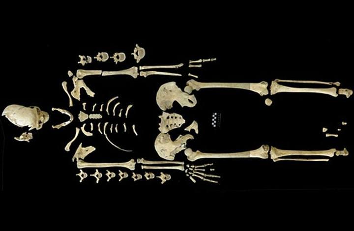 Esqueleto de 7.000 años que presenta evidencias de la leucemia más antigua registrada hasta el momento.