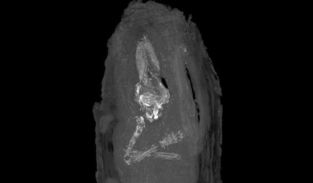 Escaneado del cráneo y los miembros superiores del feto momificado.