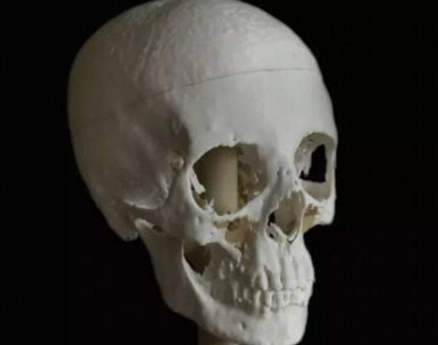 Modelo cráneo original impreso en 3D.