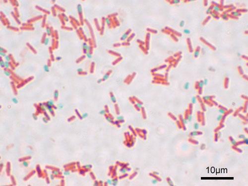 Imagen microscópica de la formación de esporas bacterianas de Bacillus subtilis (ATCC 6633) Coloración de esporas, ampliación: 1.000. (verde) esporas, (rojo) estado vegetativo.