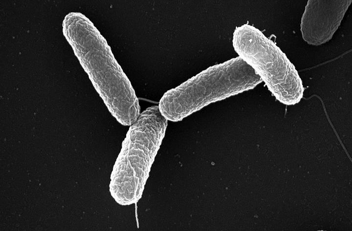 Bacteria Salmonella entérica. Foto: Wikipedia.