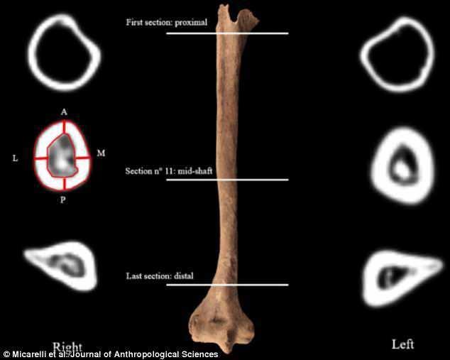 El húmero (foto) muestra considerable pérdida de hueso, típico de alguien que utilizó una prótesis. La orientación de la fractura en la parte delantera del brazo evidencia que el corte fue seco y angular.