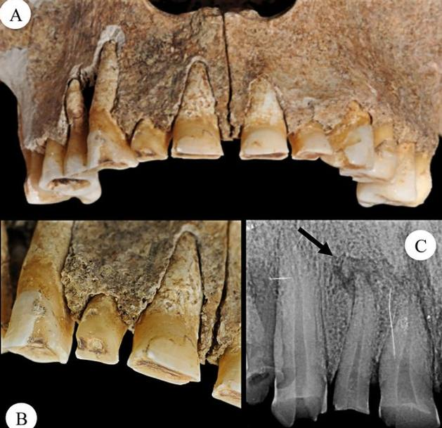 Los dientes del hombre también muestran un desgaste extremo, en especial del lado de la mano amputada. Esto sugiere que utilizaba su mandíbula para ajustar las correas que mantenían la prótesis en su lugar.