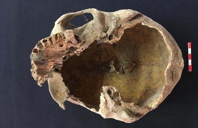 Cráneo, presumiblemente de Arnau de Torroja.