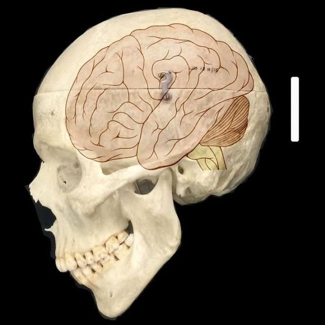 La familia de genes NOTCH2NL se encuentran solo en humanos y parece desempeñar un papel fundamental en que nuestro cerebro sea más grande que el de otros animales. Crédito: Fiddes et al./Cell.