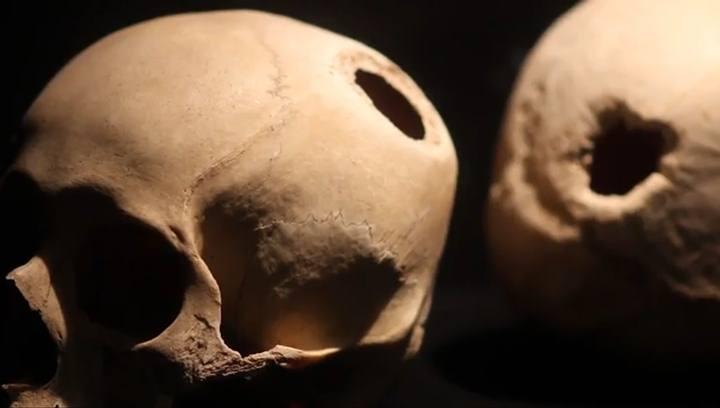 skull-drill-holes