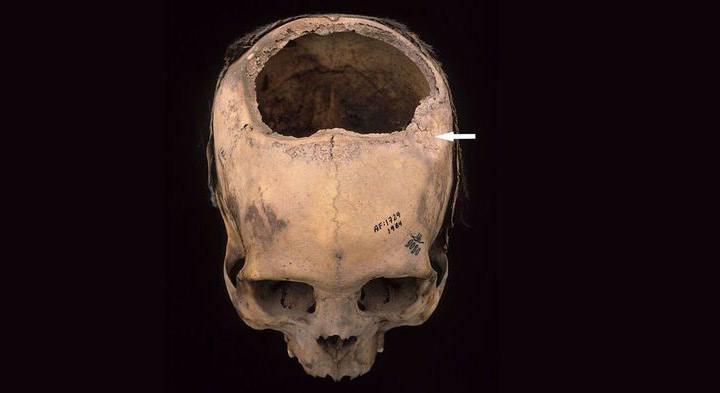 Este desafortunado individuo, que vivió en Perú entre el 400 y el 200 a.C., sufrió una fractura de cráneo (flecha blanca) que fue probablemente tratada con una trepanación, pero murió menos de 2 semanas después. Crédito: D. KUSHNER ET AL., WORLD NEUROSURGERY 114, 245 (2018).